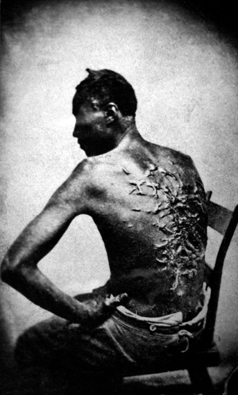 Whipped American slave Gordon, 1863